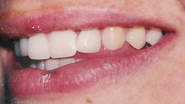 Cosmetic Dentistry Before & After