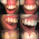 Porcelain Veneer Before & After